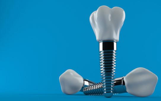 Síntomas del rechazo de un implante dental